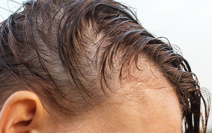 Hair Loss On One Side Of Head Female