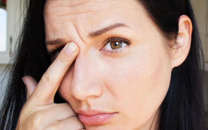 Wrinkles On Forehead Causes
