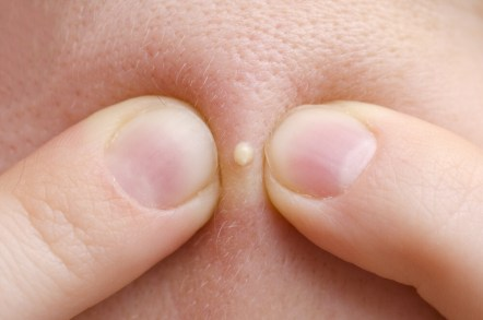 Avoid Squeezing Buttocks Pimples