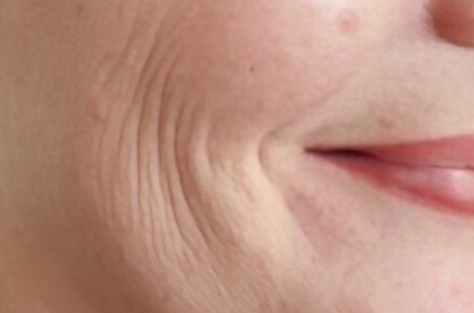 Deep Wrinkles Around Mouth