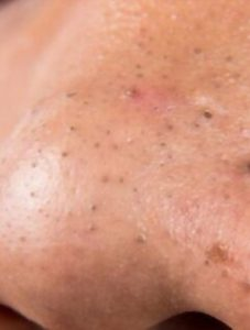 Homemade Remedies For Blackheads