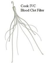 Cook Blood Clot Filter Lawsuits