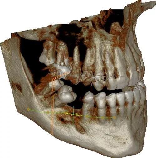 radiologie_dentaire_3d