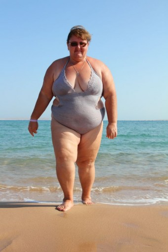 Metabolic Syndrome (Insulin Resistance Syndrome)