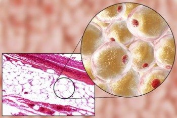Adipose cells are called adipocytes. Adipose tissue is made up of adipocytes, white blood cells, and fibroblasts, surrounded by connective tissue, collagen, nerves and blood vessels. Adipose cells constitute the majority of adipose tissue volume.