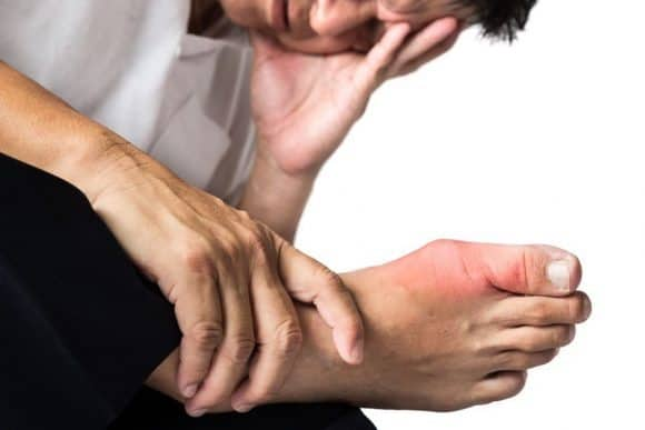 Uric Acid, Hyperuricemia, and Gout