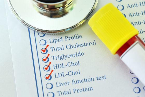 Non HDL cholesterol