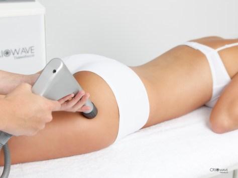 traitement de la cellulite par onde de choc