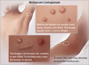 molluscum contagiosum photos