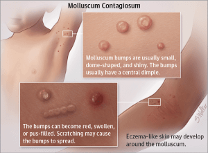 What Is Molluscum Contagiosum