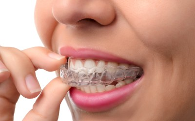 Invisalign Smile Correction