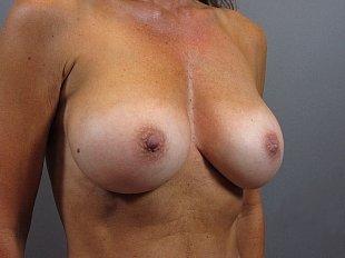 Breast Augmentation Procedure by Dr. Jeff Ptak MD, FACS
