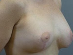 Mastopexy with fat grafting to breasts