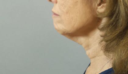 Patient #: 2622Gender: FemaleEthnicity: CaucasianAge: 41 - 50Procedure: ThermiTight