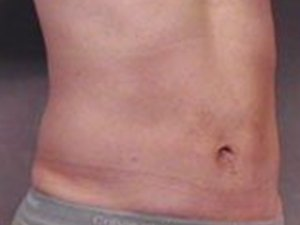 Procedure performed by board certified plastic surgeon Dr. Jeffrey Ptak, MD. Procedure was ultrasonic VASER liposuction to the abdomen, and flanks to help contour the patient's waistline and legs. The patient is a 41-50 year old caucasian, male. Oblique view, before photo.