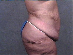This patient is a 41 - 50 year old, caucasian female. 360 abdominoplasty, tummy tuck where the incision was continued the entire way around the body to incorporate a full body lift and contour. Scar right on the thong line. Incidental liposuction. Inner Thigh lift and buttock lift. lateral side view.