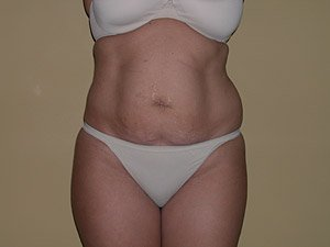 The photo shows the preoperative photo of a patient that Dr. Jeffrey Ptak performed a standard abdominoplasty, or tummy tuck. Liposuction of the flanks was also performed with ultrasonic VASER liposuction. The patient is a 36-40 year old caucasian female. The photo shows the oblique view. This patient has had multiple pregnancies in the past.