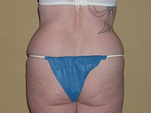 This patient is a 41 - 50 year old, caucasian female. 360 abdominoplasty, where the incision was continued the entire way around the body to incorporate a body lift. Back view