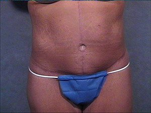 This patient is a 41 - 50 year old, hispanic female. She received a fleur de lis tummy tuck  or abdominoplasty, where the incision was continued the entire way around the body to incorporate a body lift. Front view