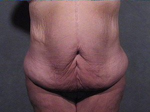 This patient is a 41 - 50 year old, hispanic female. She received a tummy tuck  or abdominoplasty, where the incision was continued the entire way around the body to incorporate a body lift. Front view