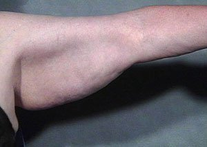 This patient is a 51 - 65 year old caucasian female who received a bilateral brachioplasty or arm lift.