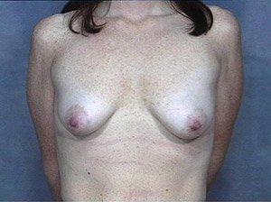 The Procedure performed was a full pattern Breast Lift, or Mastopexy with the addition of silicone gummy bear breast implants. The patient is a 41-50 year old caucasian female. Procedure performed by Dr. Jeffrey J. Ptak, MD, FACS. Front  view. Before Photo.