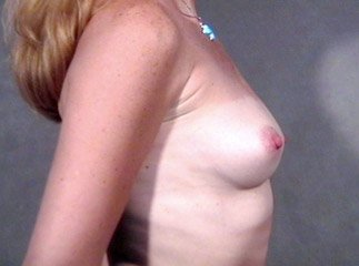 breast_patient08_before01