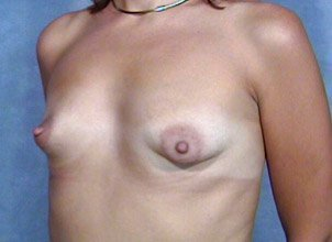 The procedure performed was a primary breast augmentation with silicone breast implants. The patient shown is a caucasian female, age 31-35. Before photo, oblique view. By Dr. Jeffrey Ptak. implants placed with incision through the nipple.