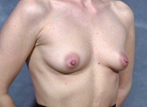 The procedure performed was a primary breast augmentation with silicone breast implants. The patient shown is a caucasian female, age 31-35. Before photo, oblique view. By Dr. Jeffrey Ptak.