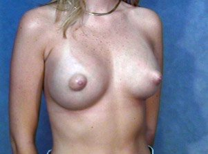 The patient shown is a caucasian female, age 26-30. The procedure performed was a primary breast augmentation with silicone breast implants. After photo
