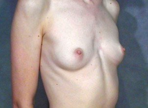 The patient shown is a caucasian female, age 31-35. The procedure performed was a primary breast augmentation with silicone breast implants. Before photo