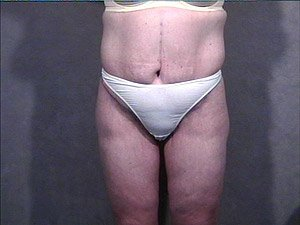 This patient is a 34 - 40 year old, caucasian female. 360 abdominoplasty, tummy tuck where the incision was continued the entire way around the body to incorporate a body lift. She also received a buttock lift, inner thigh lift,   and incidental liposuction. front view. after major weight loss.
