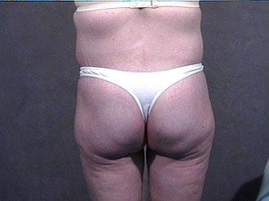 This patient is a 34 - 40 year old, caucasian female. 360 abdominoplasty, tummy tuck where the incision was continued the entire way around the body to incorporate a body lift. She also received a buttock lift, inner thigh lift,   and incidental liposuction. back view. after major weight loss.