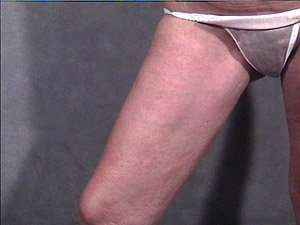 female-inner-thigh-lift-post1