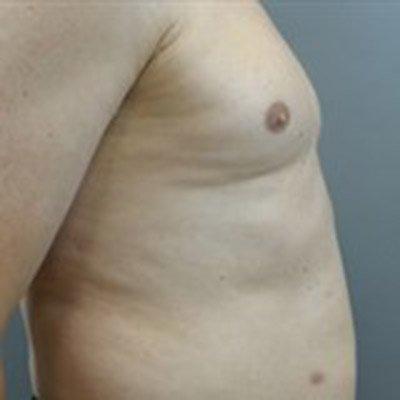 gynecomastia_patient04_before01