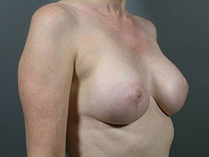 The patient seen is a 41-50 year old caucasian female. The procedure performed was a Breast Implant Exchange with full Mastopexy (Breast Lift) for better implant and nipple position. Performed by Dr. Jeffrey J. Ptak, MD, FACS. After Photo, Oblique View.