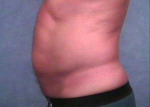 The patient is a 41-50 year old Caucasian male. The procedure performed was ultrasonic vaser liposuction to the abdomen, belly, stomach, to thin out the fat layer. The performing surgeon was Dr. Jeffrey Ptak. Before Photo