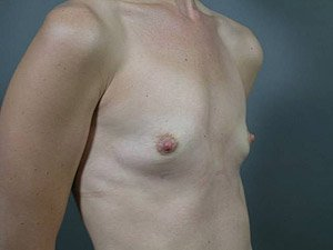 This patient is a 26-31 year old caucasian female. Procedure performed by board certified plastic surgeon, Dr. Jeffrey Ptak, was a primary breast augmentation with silicone gummy bear implants. Before oblique view.