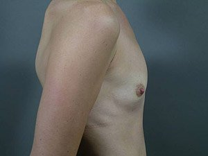 This patient is a 26-31 year old caucasian female. Procedure performed by board certified plastic surgeon, Dr. Jeffrey Ptak, was a primary breast augmentation with silicone gummy bear implants. Before lateral view.