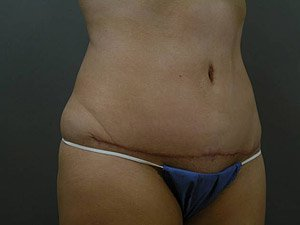 The photo shows the postoperative photo of a patient that Dr. Jeffrey Ptak performed a standard abdominoplasty, or tummy tuck. The patient is a 41-50 year old caucasian female. The photo shows the oblique view. This patient has had multiple pregnancies in the past. Scar is from hip bone to hip bone