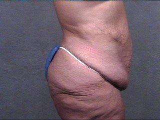 abdominoplasty-buttock thigh lift profile pre craig