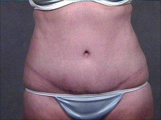 abdominoplasty post griffo