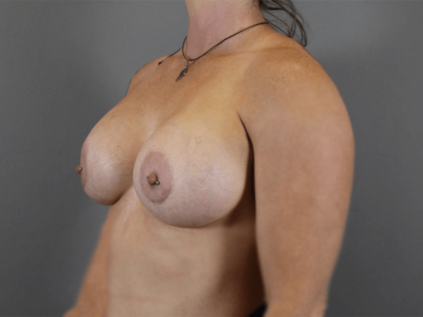 Procedure performed by board certified plastic surgeon, Dr. Jeffrey Ptak. Bilateral Subpectoral Breast Augmentation 505cc Moderate Plus Sientra Cohesive Gel Silicone Implants.