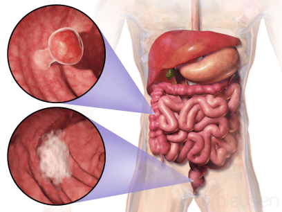 Early Colorectal Cancer Screening Can Benefit Overall Health