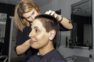 Practical Hair Care Tips for After a Hair Transplant Treatment
