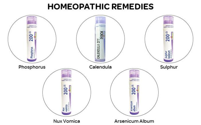 what to do if your dog eats chocolate - Homeopathic Remedies for Dogs