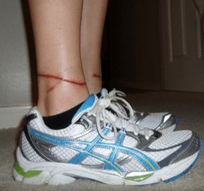 lacerated ankles