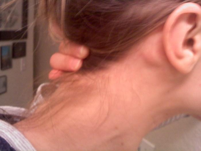 penyakit hipertensi, pasti pernah mengeluhkan rasa sakit pada bagian belakang kepala