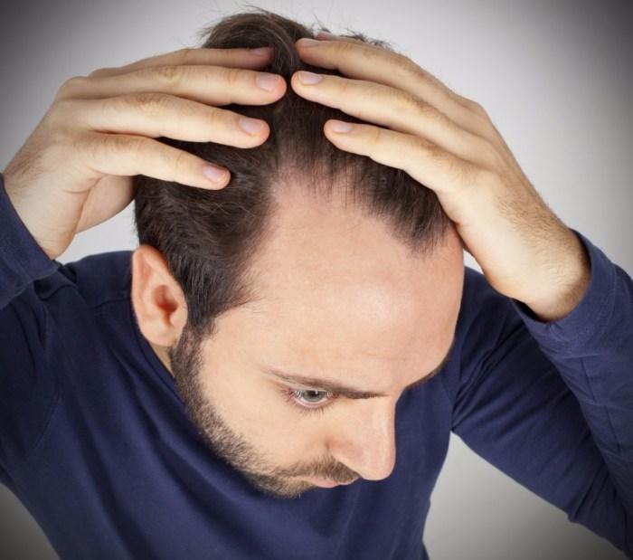 faktor usia merupakan penyebab rambut rontok berlebihan