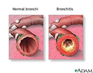 Photo on right shows acute bronchitis with yellow mucus inside the airway